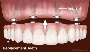 maxillary denture-implants