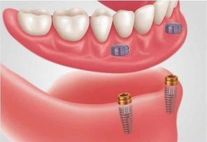 snap on lower denture